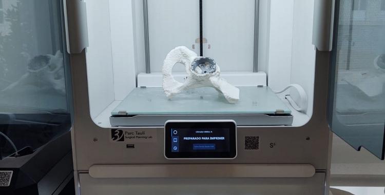 Imatge del Laboratori 3D del Taulí   Cedida