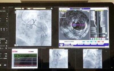 Diagnòstics a la sala d'hemodinàmica/ Taulí