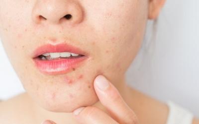 La mascaretadónaproblemes a la pell al 50% de les persones que la porten tota la jornada | Cedida
