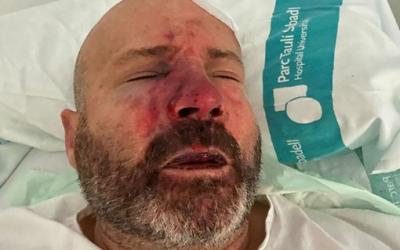 Al taxista li van trencar el nas, dues costelles, i li han hagut de posar 7 punts al cap | Cedida